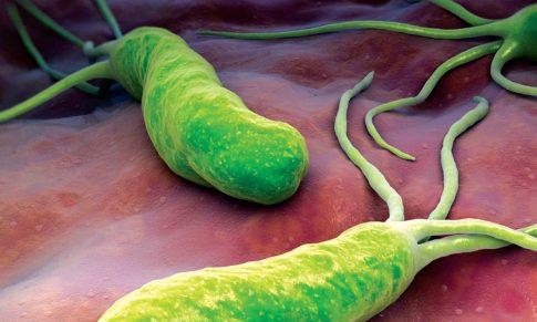 """Tratamentul infecţiei cu Helicobacter pylori: s-au schimbat """"regulile"""""""