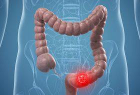 Noi intervale de screening pentru cancerul colorectal