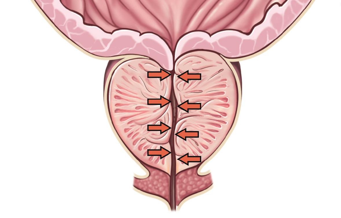 Inhibitorii de 5-alfa-reductază și riscul de diabet zaharat de tip 2