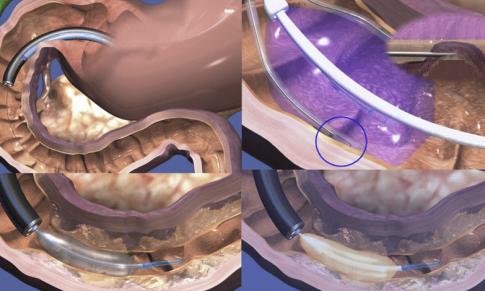 Ablația mucoasei duodenale la pacienți cu diabet zaharat de tip 2